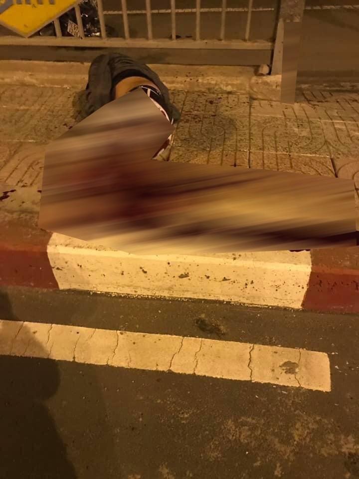 Nam thanh niên văng lên thành cầu nằm và bị đứt lìa 1 chân
