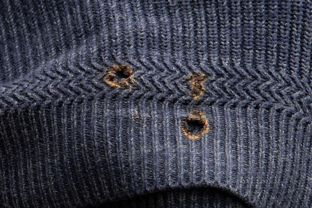 Cận cảnh vết thủng do cháy trên áo của ôngMurch 