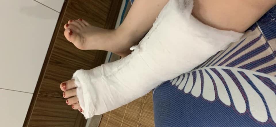 Hậu quả làm chân trái bị chấn thương, phải bó bột